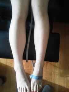 一回の体験でこんなに脚がほっそり